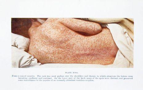 Espalda de una mujer con sarampión