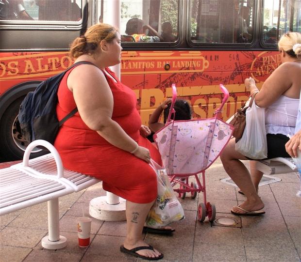 Obesidad 3